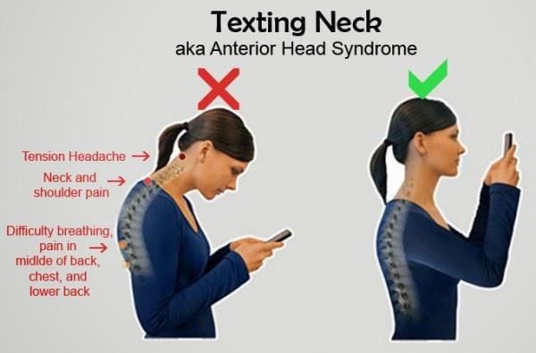 Tiga Cara Mengatasi Sindrom 'Text Neck'