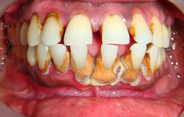 Ketahui Penyebab Karang Gigi Sebagai Bahan Pendidikan Kesehatan Untuk Keluarga