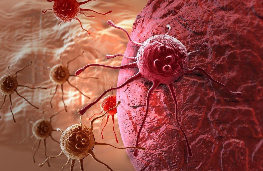 Potongan Sel Kanker Yang Menjauhi Bawang Putih, Ternyata Itu Hoax dan Itu Hanya Cairan Bernama …..