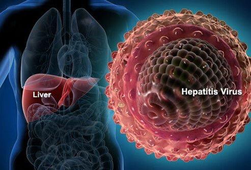 Mengenali Hepatitis-B, Ini Rekomendasi Dokter Untuk Mengatasinya