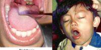 Ingin Tahu Rasanya Menderita Difteri? Baca Kisah Ibu ini
