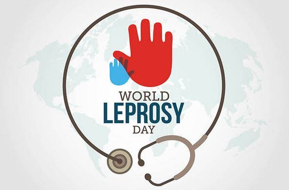 Kutukan penyakit kusta dan tantangan eliminasi di Indonesia: Memperingati World leprosy day, 27 Januari.